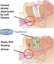 ema-infographic