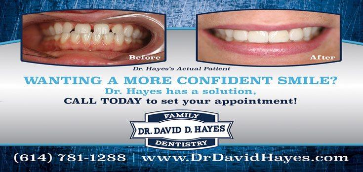 veneer Dr Hayes - Dentist - Westerville, Ohio - Columbus, Ohio